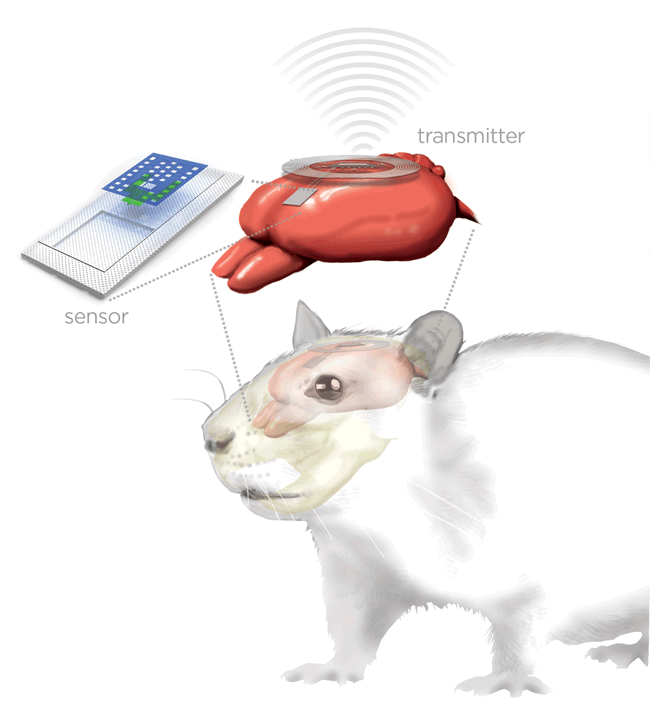 An artist's rendering of the brain sensor and wireless transmitter monitoring a rat's brain.
