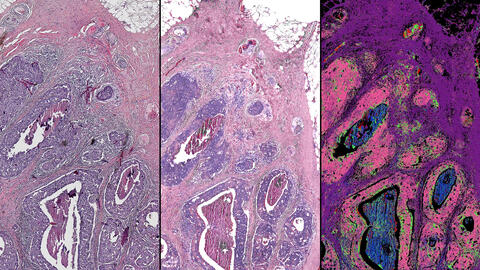 This side-by-side comparison of a breast tissue biopsy demonstrates some of the infrared-optical hybrid microscope's capabilities. On the left, a tissue sample dyed by traditional methods. Center, a computed stain created from infrared-optical hybrid imaging. Right, tissue types identified with infrared data. The pink in this image signifies malignant cancer. Image courtesy of Rohit Bhargava
